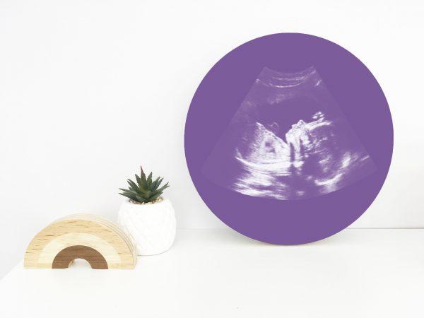 Baby Shower Gift, Ultrasound Artwork, nursery decor, nursery art, baby, art, sonogram print, nursery, baby, pregnancy keepsake, baby keepsake, ultrasound print, baby gift, ultrasound, Wood print, Self Hanging